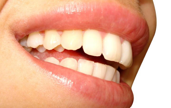 Smile Teeth Web