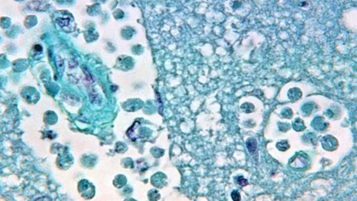 Naegleria fowleri in brain tissue. Photo: CDC